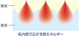 肌内部で広がる熱エネルギー