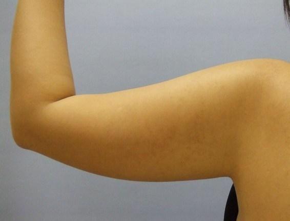 美容と健康の魔法の杖-上腕前
